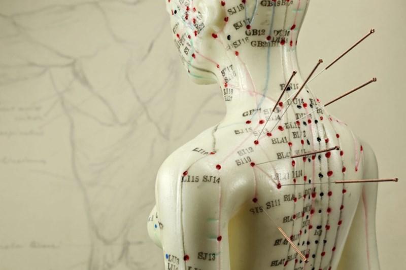 Рефлексотерапия - миф или реальность?