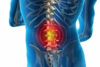 Грыжа межпозвоночного диска лечение без операции